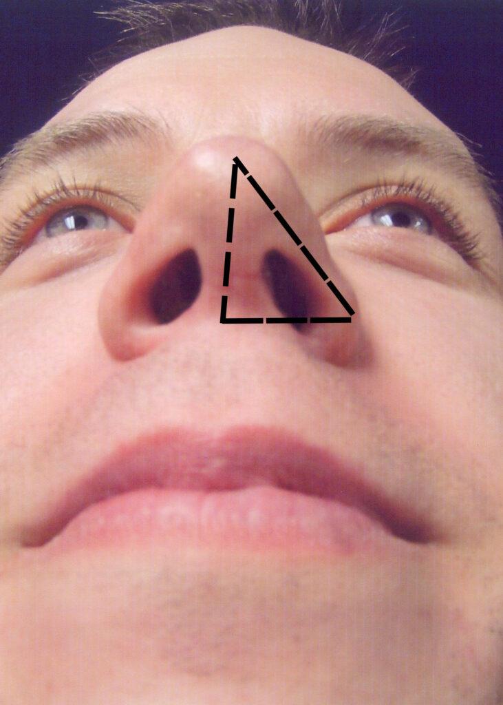 Splay Angle